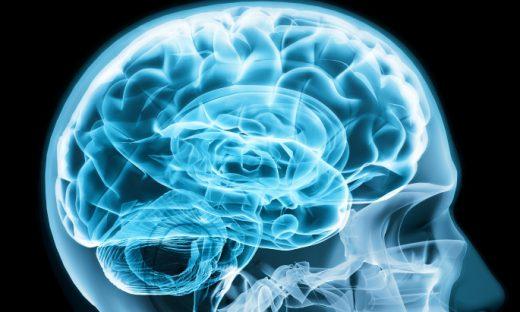 脳みそのレントゲンクローズアップ写真